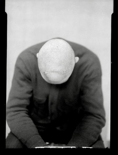 Dr. Harvey Cushing: Neurosurgery Patient, 1930